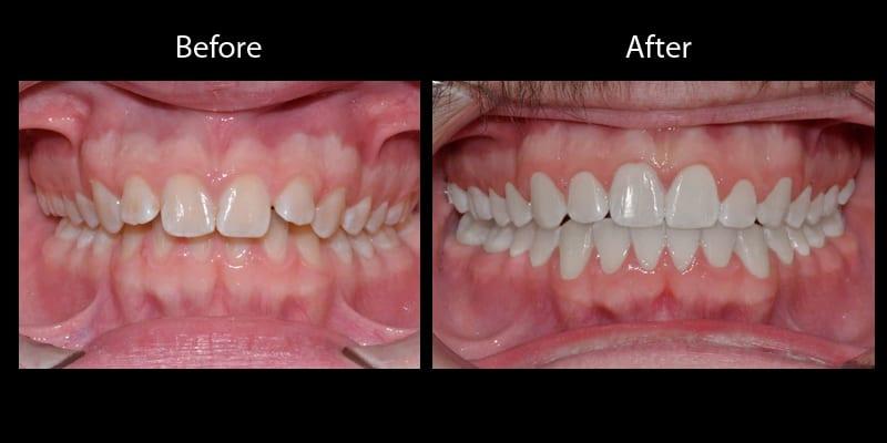 Teeth 10