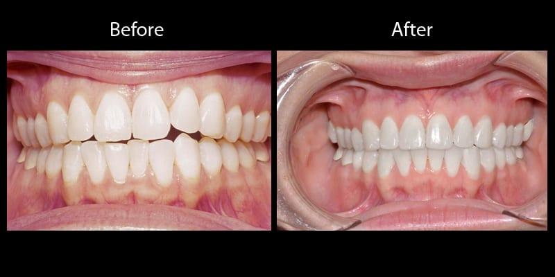 Teeth 11