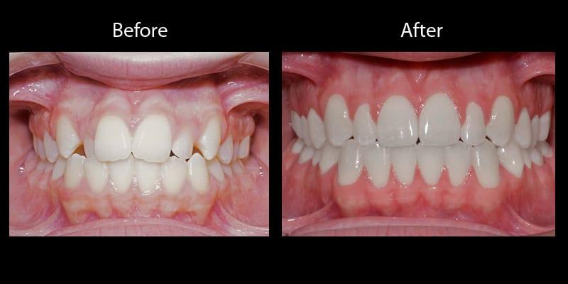 Teeth 12