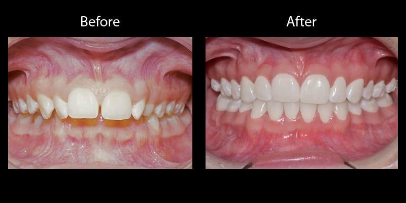 Teeth 7