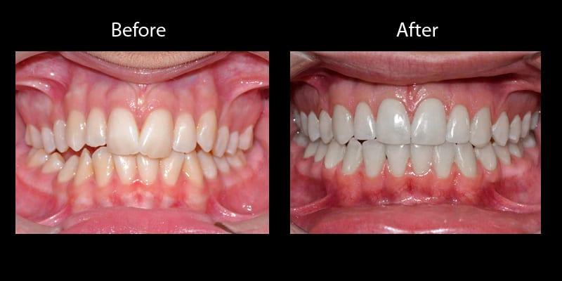 Teeth 8