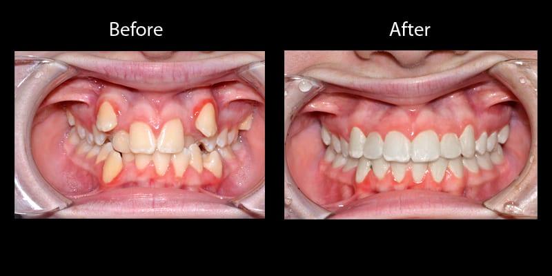 Teeth 9
