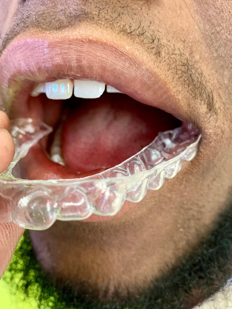 common bite problems within orthodontic treatment
