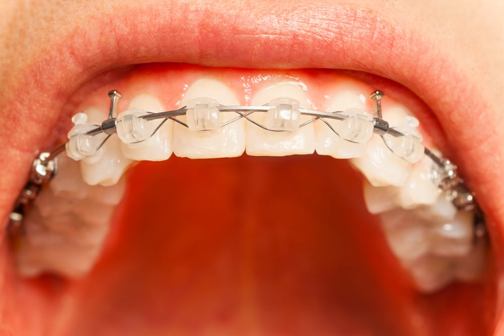 adult orthodontic treatment is more popular at James Karpac Orthodontics