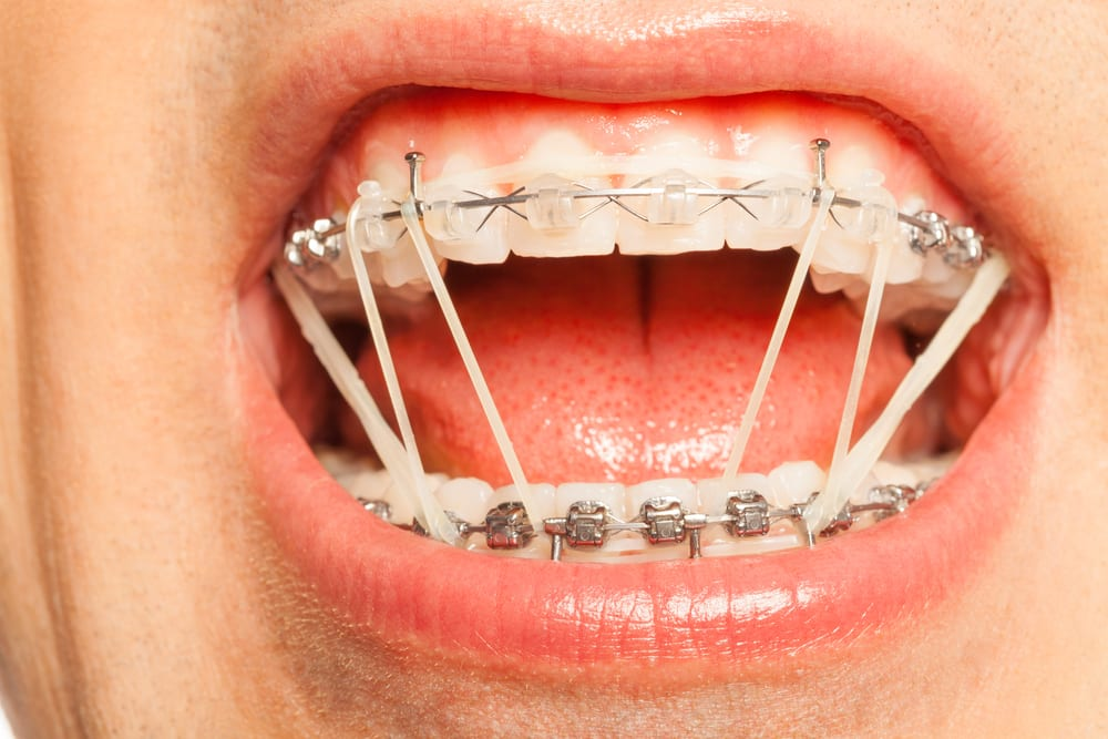 rubber bands are a crucial part of every orthodontic treatment process